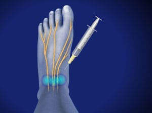 ankle, ankle pain, ankle injury, ankle surgery, pain care, orthopedic, doctor, piedmont interventional, wilson