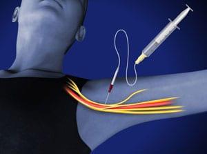 axillary, brachial, shoulder pain, pain, interventional, salisbury, doctor wilson