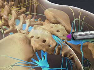 caudal, epidural, steroid, spine, spinal cord, back pain, medication, salisbury medical, mooresville doctor, pain care