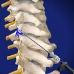 medial, cervical, facet, pain relied, back pain, piedmont, interventional, pain care, salisbury