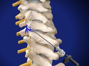medial, cervical, facet, pain relied, back pain, piedmont, interventional, pain care, salisbury