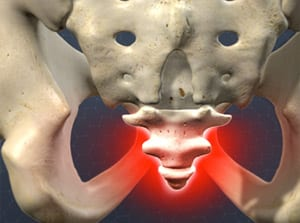 coccyx, pain relief, pain management, tailbone, doctor wilson, piedmont, interventional, medical