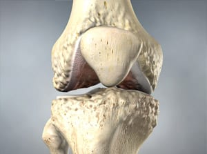 osteoarthritis, knee pain, knee injury, salisbury medical, pain, interventional, wilson, orthopedic