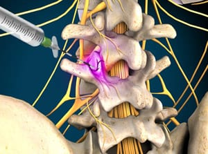 medial branch, pain management, facet joints, vertebrae, back pain, salisbury, mooresville