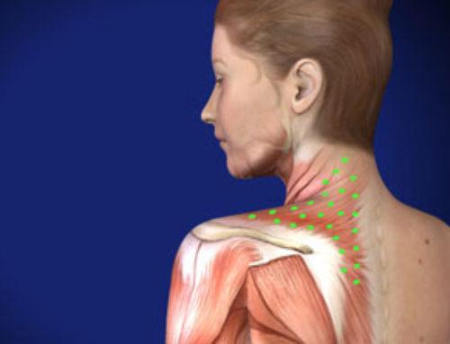 Peripheral Neuralgia - Piedmont Interventional Pain Care