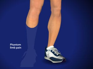 phantom, limb, pain care, stump pain, medical, surgery, medical, doctor wilson, salisbury, interventional