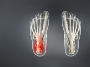 plantar fasciitis, plantar, fasciitis, foot pain, pain care, pain relief, interventional, piedmont, salisbury medical, mooresville medical