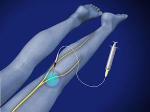 salisbury, pain, medical, interventional, leg pain, numbness, piedmont, wilson, orthopedic