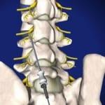 lumbar, lumbar spine, neurotomy, pain, interventional, facet joint, doctor wilson, salisbury medical, mooresville