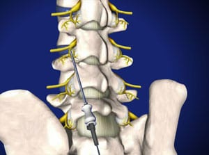 lumbar, lumbar spine, neurotomy, pain, interventional, facet joint, doctor wilson, salisbury medical, mooresville