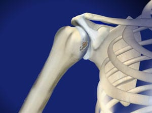 shoulder pain, shoulder arthritis, pain, interventional, wilson, arthritis, salisbury