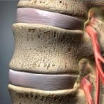 spinal cord, back pain, back injury, wilson, pain, interventional, piedmont, stenosis