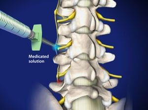 lumbar, lumbar spine, pain, pain relief, leg pain, salisbury, mooresville, doctor, medical, piedmont, interventional