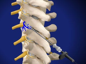 thoracic, rhizotomy, facet joint, medial, salisbury doctor, mooresville doctor, interventional, piedmont, pain care