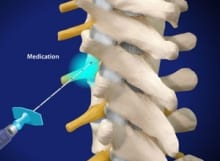 pinched nerve, thoracic, spine, back pain, epidural, pain relief, salisbury, doctor, mooresville doctor, salisbury medical, wilson, interventional