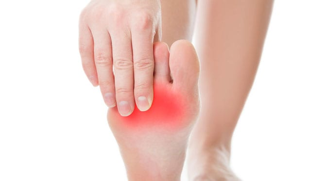 Plantar Fasciitis Can Be Painful But Also Prevented